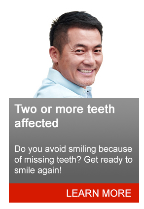 Homepage CTA   Two or More Teeth (TEST July 2016)  test